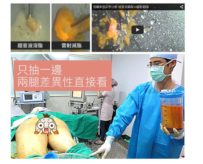 超音波溶脂技術 融化脂肪