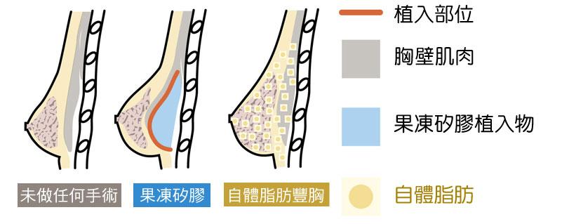 自體脂肪隆乳 果凍矽膠隆乳 差別