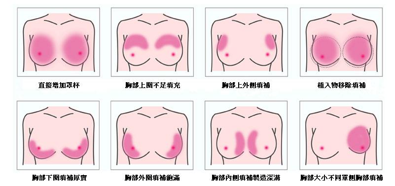 自體脂肪雕塑胸部