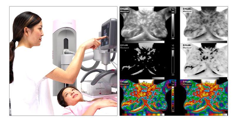 自體脂肪隆乳錢 乳房檢測 鈣化 ABVS全自動乳房斷層掃描儀 腫瘤
