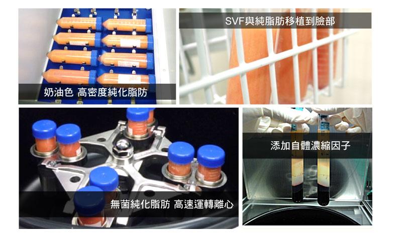 SVF與純脂生長因子 脂肪幹細胞 提升存活率