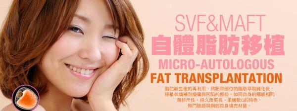自體脂肪移植 美學