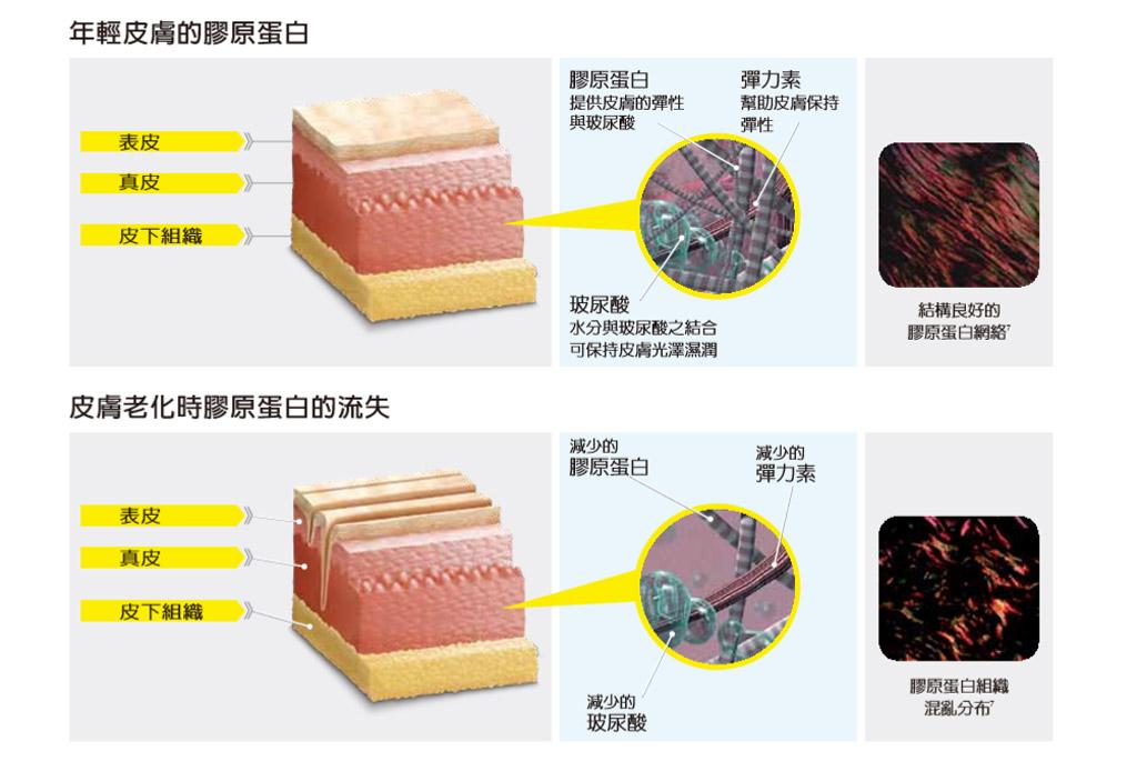 老化肌膚紋理_玻尿酸