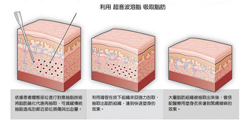 抽脂技術 水刀 音波 傳統抽脂