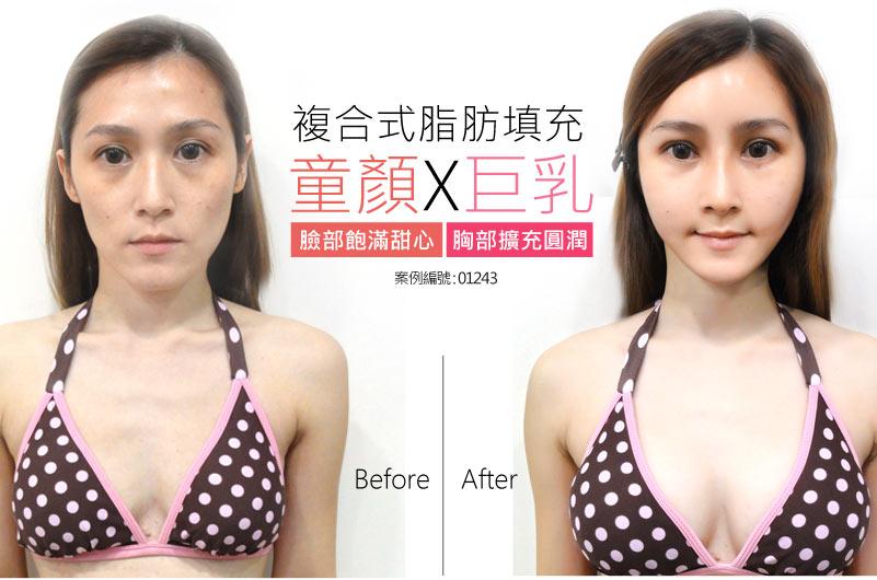 自體脂肪隆乳豐胸 女性案例