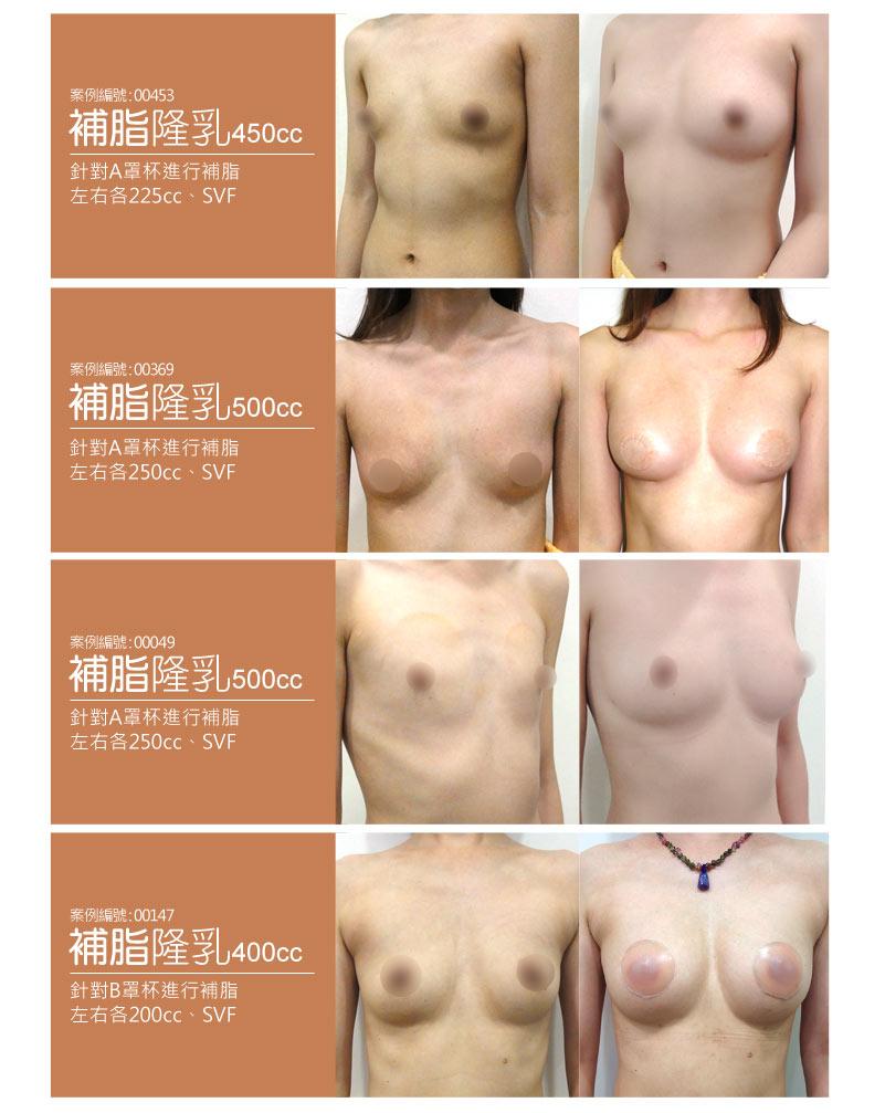 自體脂肪填補隆乳豐胸 案例