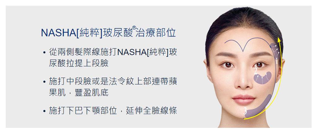 NASHA純粹玻尿酸_02