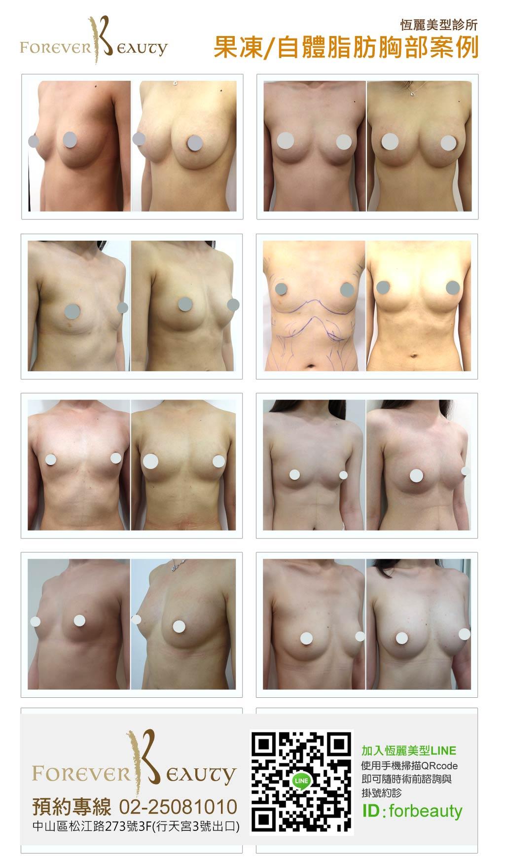隆乳推薦_恆麗美型_蔡家碩_隆乳案例