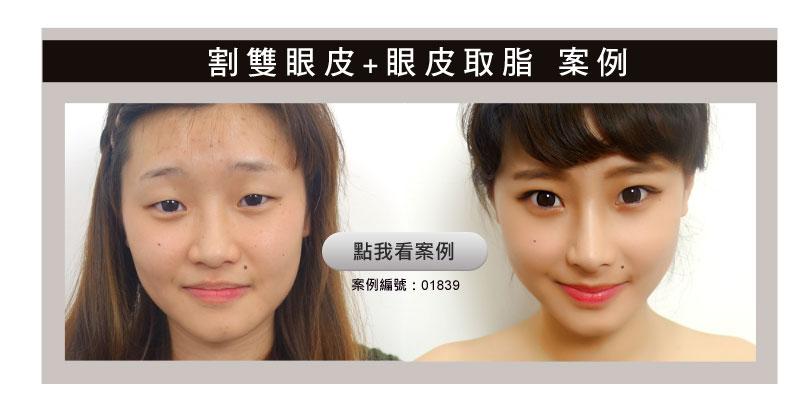 眼型矯正_補充案例