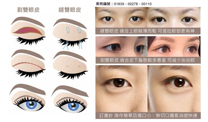 eye_06