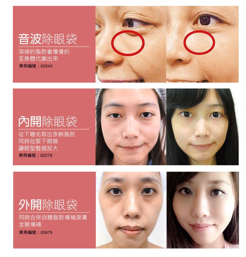 eye_20