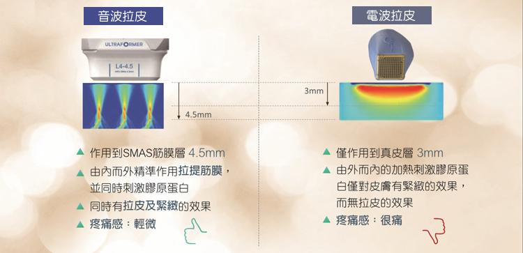 拉皮儀器比較_電波音波比較