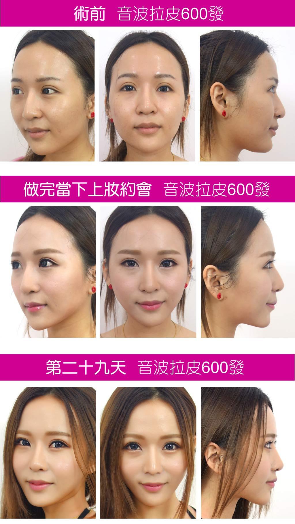 術前術中術後_改變_因波拉皮_黃宣蓉醫師_恆麗美型