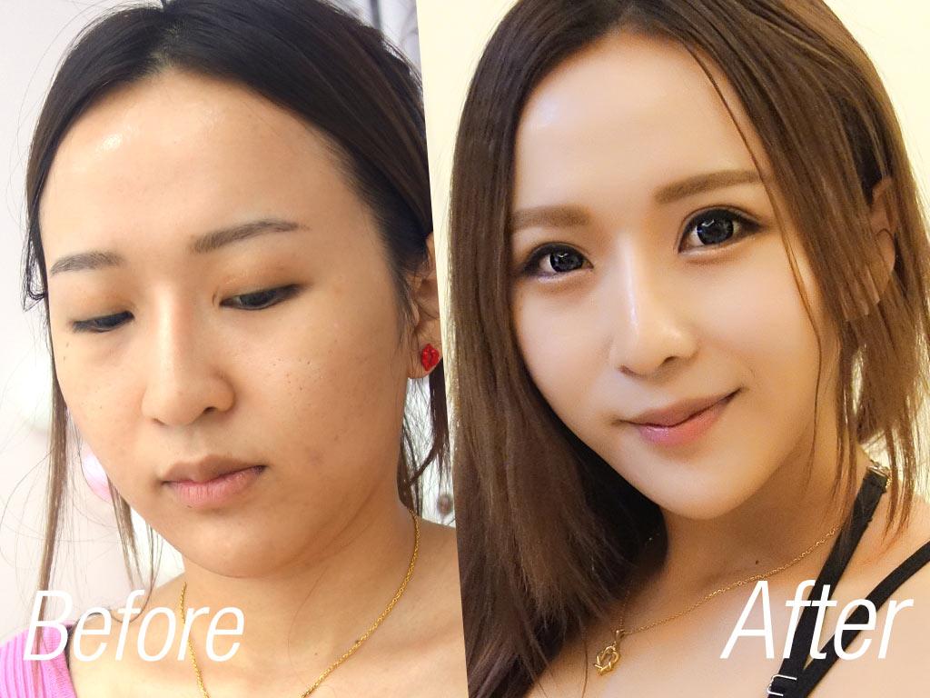 術前術後_改變_因波拉皮_黃宣蓉醫師_恆麗美型