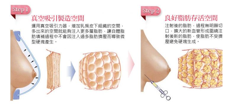 隆乳_乳房檢測_黃柏榮醫師_乳癌_硬塊_鈣化_恆麗美型_真空吸引器