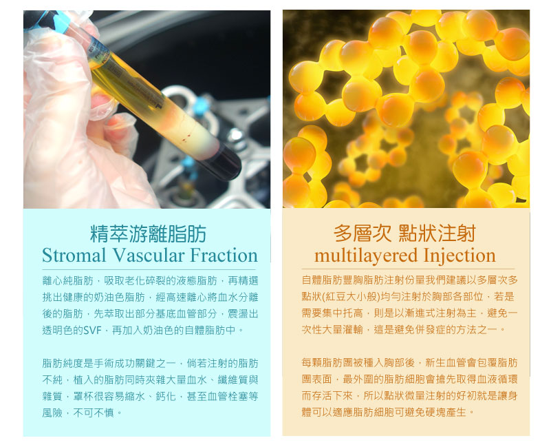 隆乳_乳房檢測_黃柏榮醫師_乳癌_硬塊_鈣化_恆麗美型_減少硬化