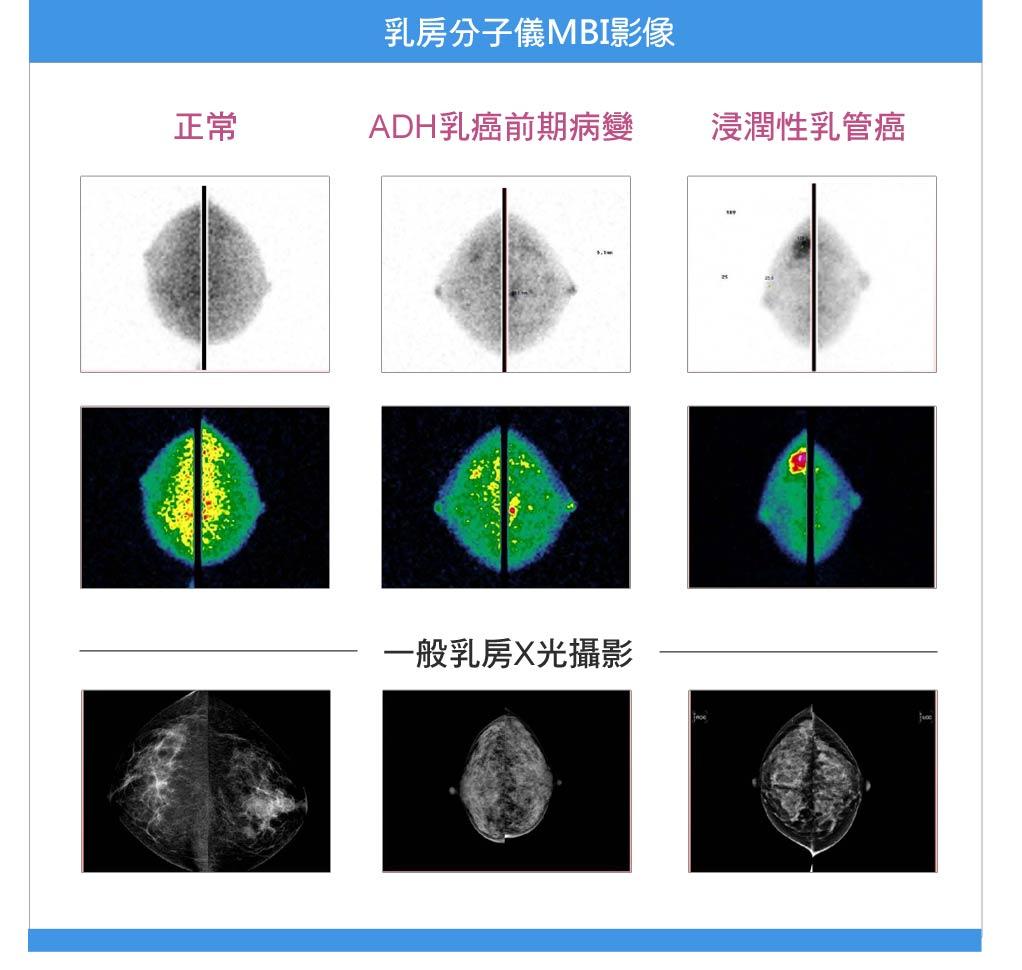 乳房分子影像(Molecular breast imaging , MBI