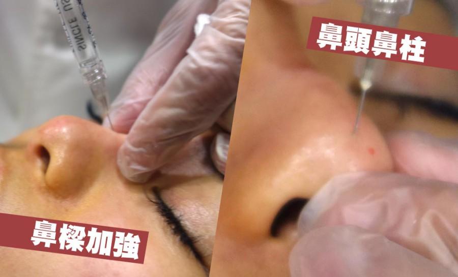 【微整形鼻子】複合式醫美鼻型,從山根、鼻背、鼻頭一次搞定,立即看到效果!(4-7)