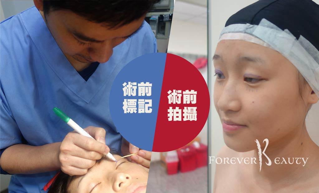 術前準備_割雙眼皮手術_賴衍翰_恆麗美型