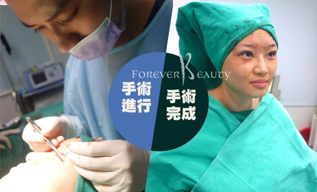 手術進行_賴衍害醫師_恆麗美型_雙眼皮