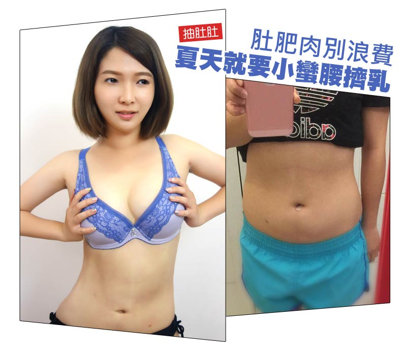 抽脂擠乳_經典案例
