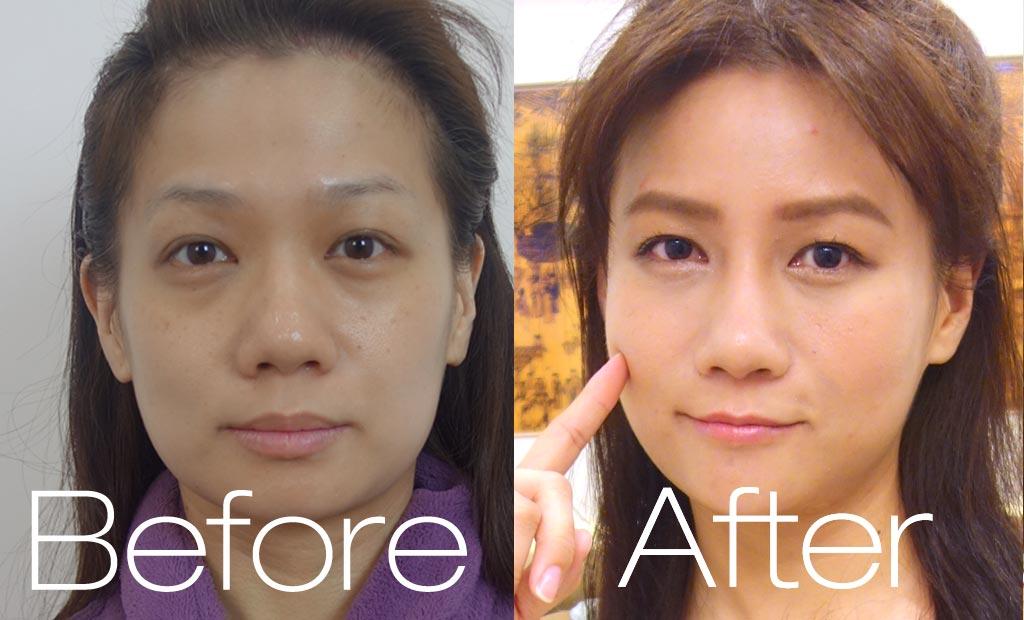 術後對比_側臉2