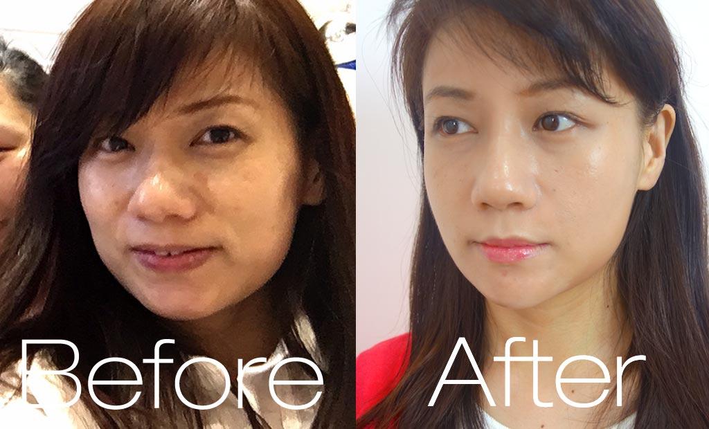 術後對比_側臉3