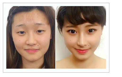 恆麗美型 割縫雙眼皮案例 完美量微整鼻
