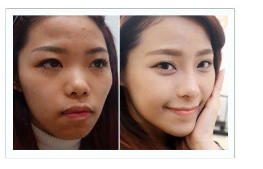 恆麗美型 微整形 完美量微整鼻填補案例