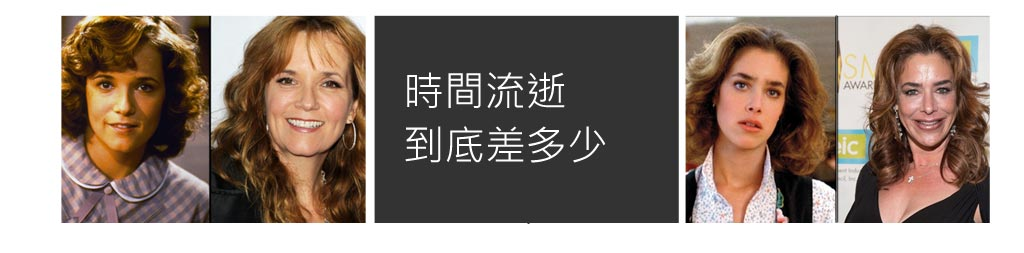 崩壞藝人_整形失敗_恆麗美型_蔡家碩_拉皮失敗_09