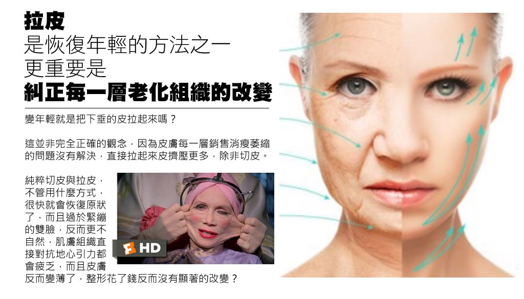 facelift_02