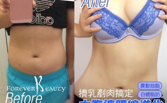 大腹婆腰線再進化-抽脂豐胸剷平贅肉