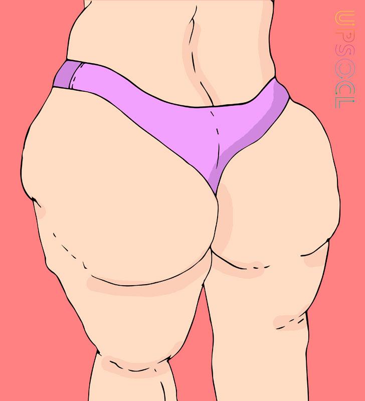 脂肪囤積屁股_下半身肥胖_恆麗美型_局部抽脂_蔡家碩