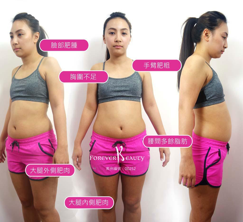 術前對比_恆麗美型_蔡家碩_抽脂豐胸_隆乳推薦_自體脂肪隆乳