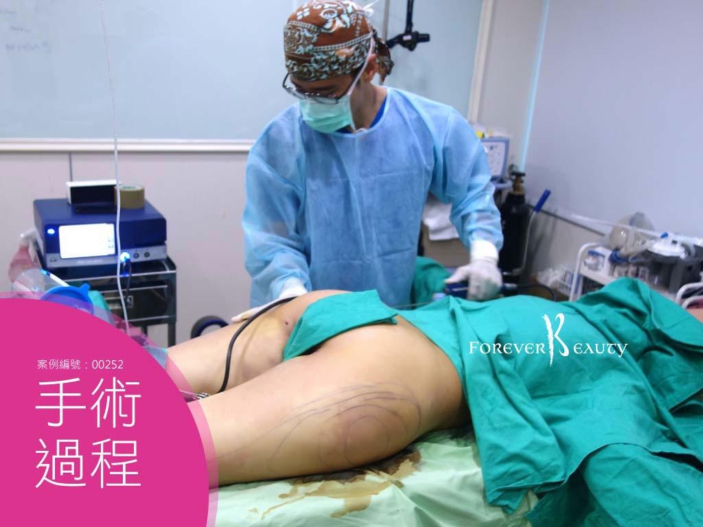 手術過程_抽脂大腿_恆例美型_蔡家碩