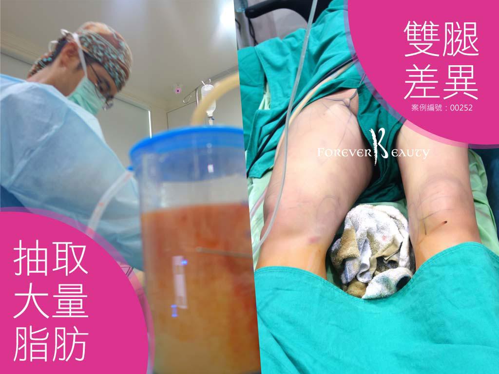 手術過程_抽取一半大腿差異