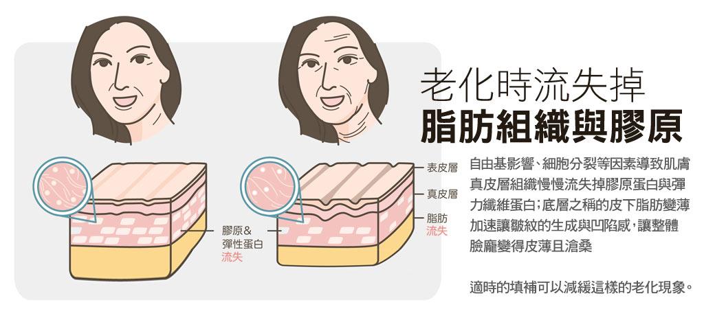 老化_彈力纖維膠原蛋白與皮下脂肪