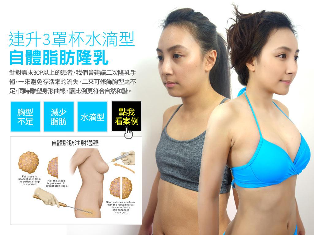 自體脂肪隆乳案例_小敏妹
