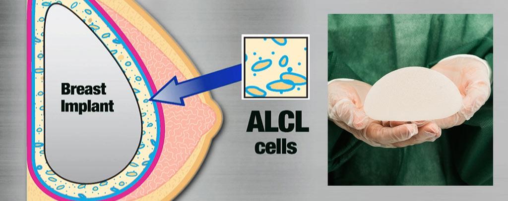 間變性大細胞淋巴瘤(ALCL)_果凍矽膠_乳房篩檢_乳房植物入致癌風險_果凍矽膠致癌_果凍矽膠癌症_隆乳癌症_隆乳失敗_隆乳後遺症_恆麗美型_蔡家碩