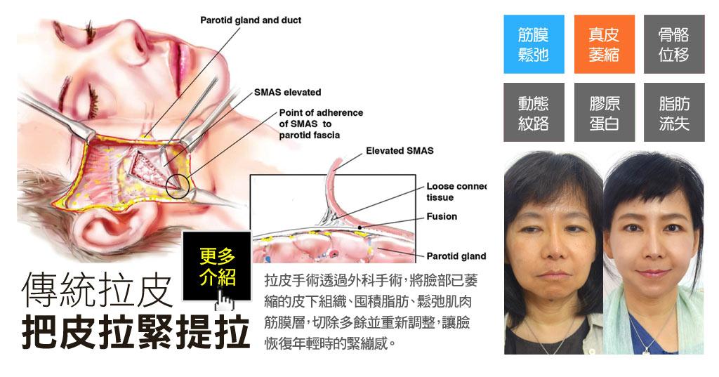 傳統筋膜拉皮