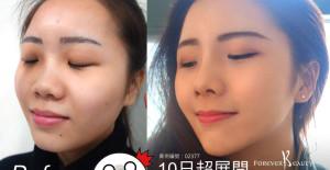 10日完美量微整鼻與下巴(完整影片收錄)