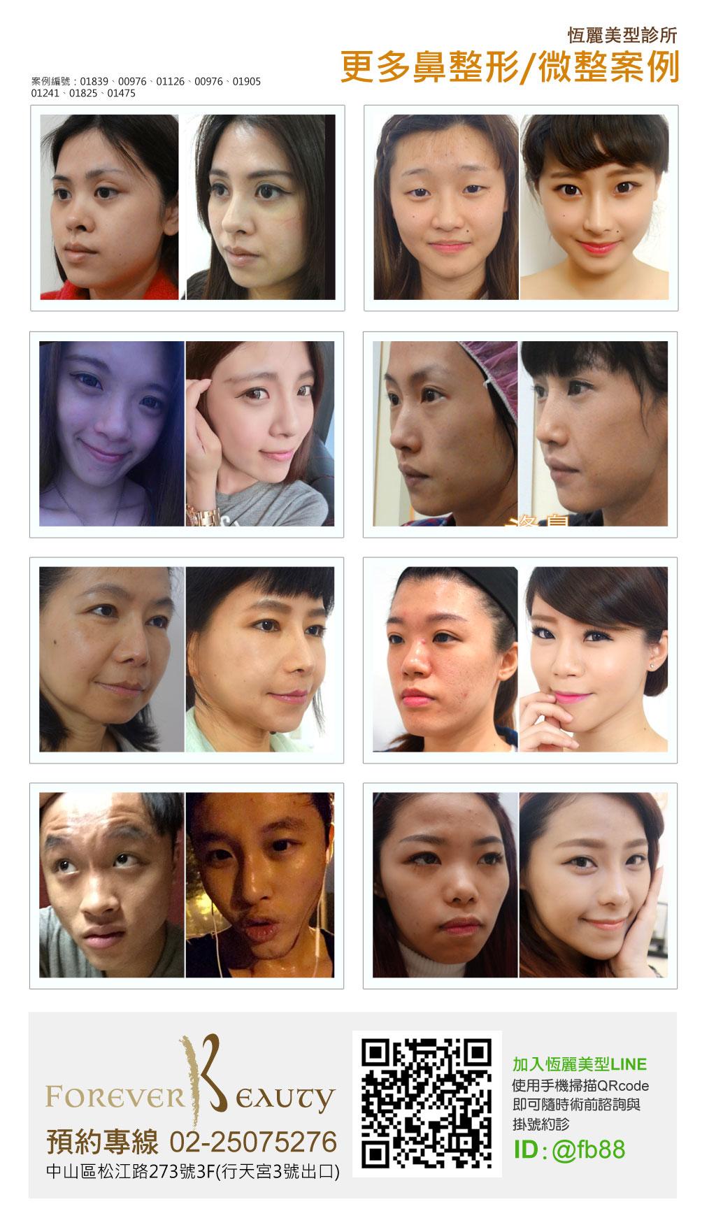 隆鼻案例推薦_恆麗美型_整形推薦_蔡家碩_隆鼻微整_隆鼻手術價格