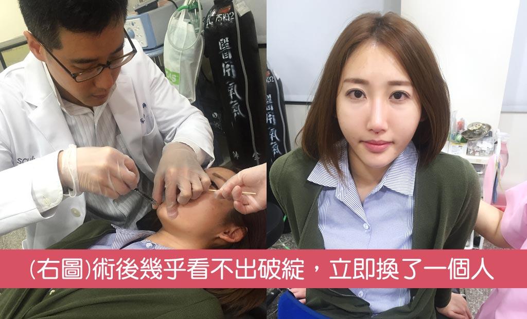 手術過程3