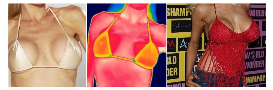【隆乳案例】果凍矽膠隆乳與自體脂肪隆乳術前手術日記必看,差最多的居然不是果凍矽膠?(1-7)