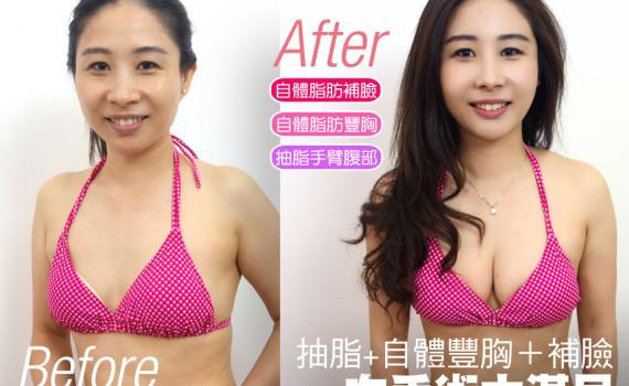 脂肪大滿足手術!抽脂手臂腹部、自體飽滿補胸、年輕化補臉