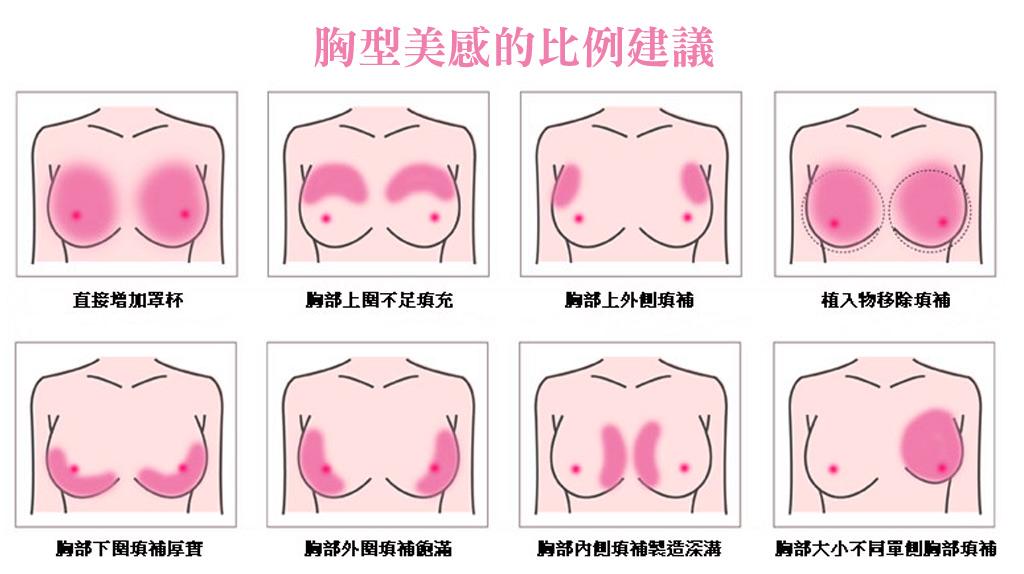 隆乳植入位置_隆乳手術_自體脂肪隆乳_自體脂肪豐胸_假體隆乳_自體隆乳_隆乳注意_隆乳推薦醫師_胸部特輯_03