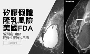 乳房植入物足夠安全嗎?美國FDA正式招開會議討論