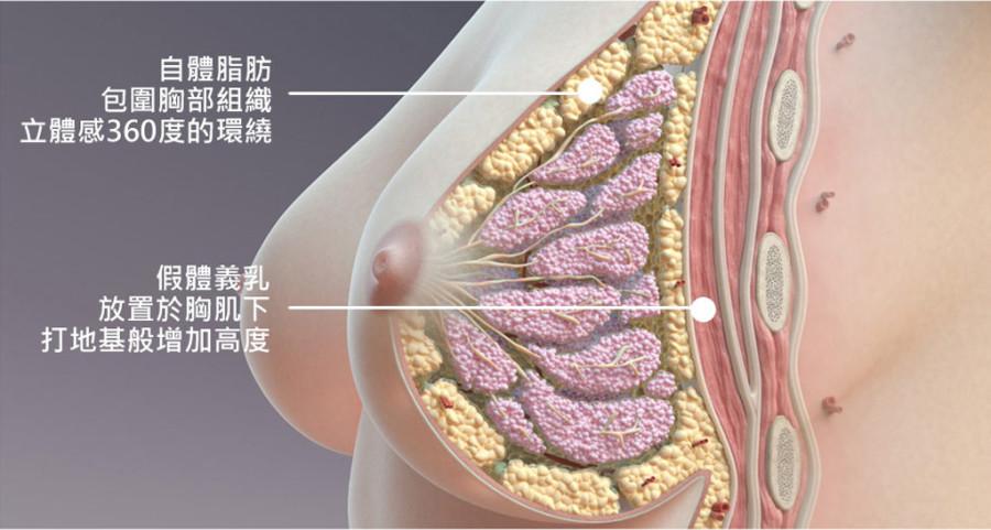 【隆乳後遺症】隆乳植入物夠安全嗎?美國FDA正式招開會議討論 (1-2)