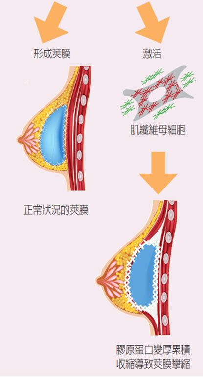什麼是夾膜攣縮