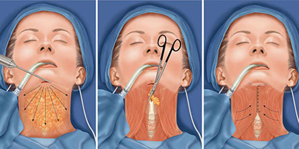 雙下巴抽脂手術過程